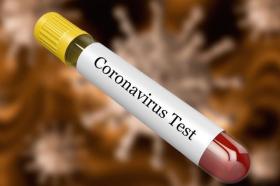 Негативен резултатот на последното лице што се тестираше за коронавирус